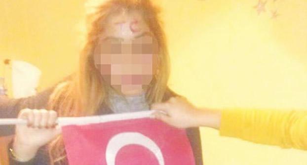 Photo of Nefret suçu: Rojda'nın alnına T.C yazdılar!
